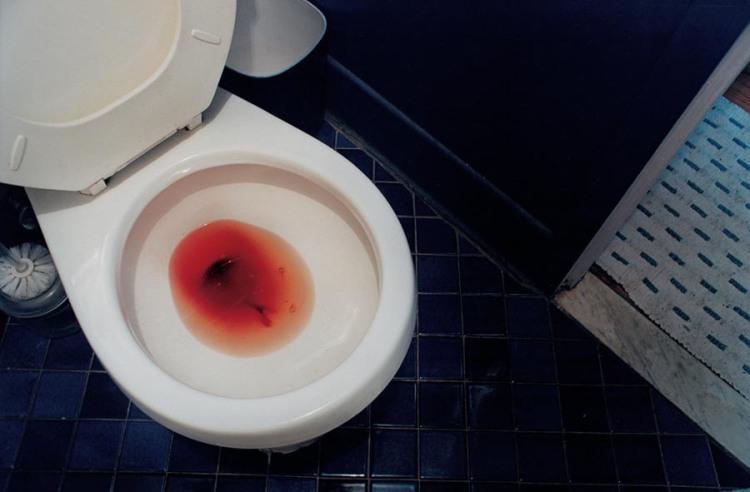 Menstrual period, 2000