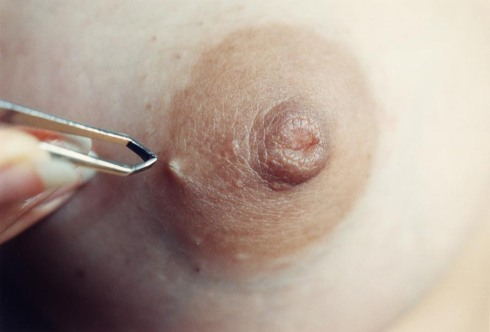 Nipple hair, 1996