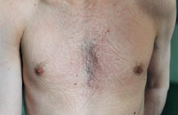 Sleep marks on chest, 1999